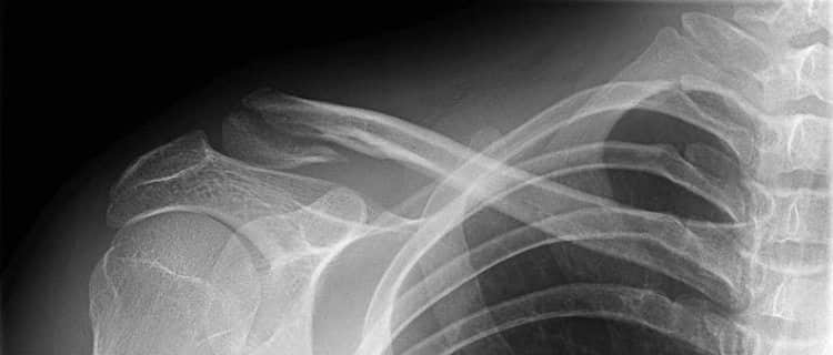 Fractured Clavicle X-Ray